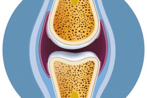 Ossa e osteoporosi: fattori di rischio e strumenti di analisi